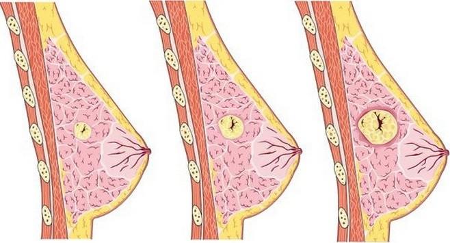 Tìm hiểu về u xơ tuyến vú