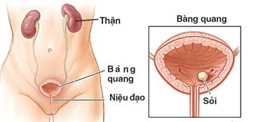 Triệu chứng viêm niệu đạo ở nữ