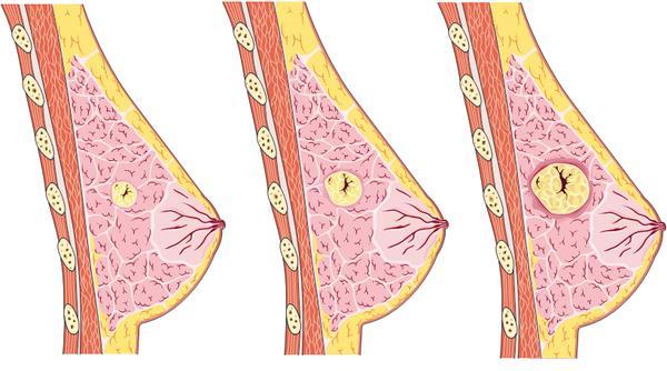 Biểu hiện của bệnh u xơ tuyến vú