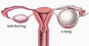Mổ u nang buồng trứng có nguy hiểm không?