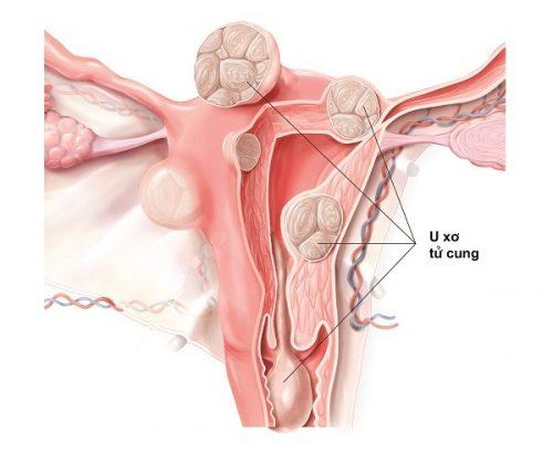 U xơ tử cung khác nhân xơ tử cung như thế nào?
