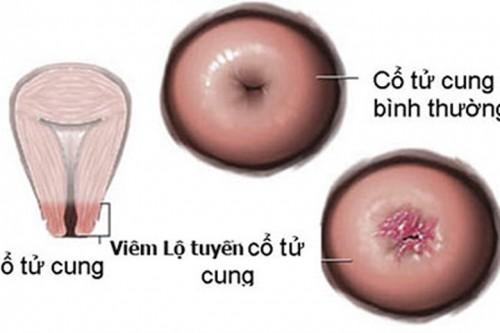 Viêm lộ tuyến cổ tử cung và cách điều trị