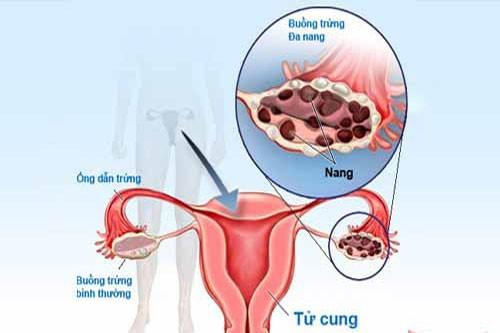 Các phương pháp điều trị đa nang buồng trứng