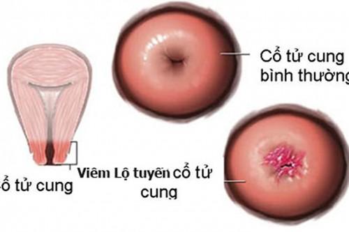 Những dấu hiệu có thể gặp khi đốt viêm lộ tuyến cổ tử cung
