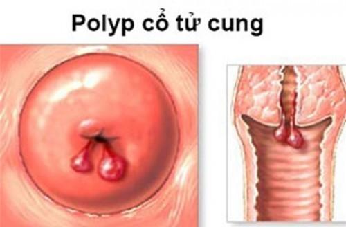 Những ảnh hưởng của polyp cổ tử cung