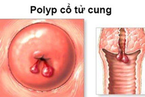 Những điều cần đặc biệt lưu ý sau phẫu thuật polyp cổ tử cung