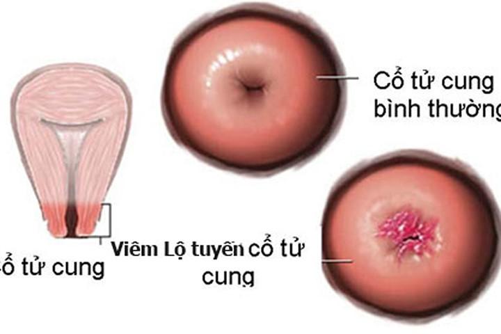 Dấu hiệu bất thường khi đốt viêm lộ tuyến cổ tử cung