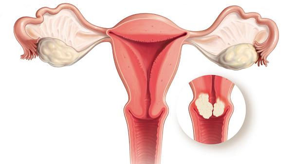 Polyp trong tử cung, nguyên nhân do đâu?