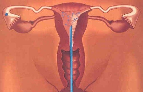 Thụ tinh nhân tạo IUI là phương pháp bơm tinh trùng vào buồng tử cung