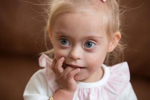 Những câu hỏi về sàng lọc Hội chứng Down trước sinh