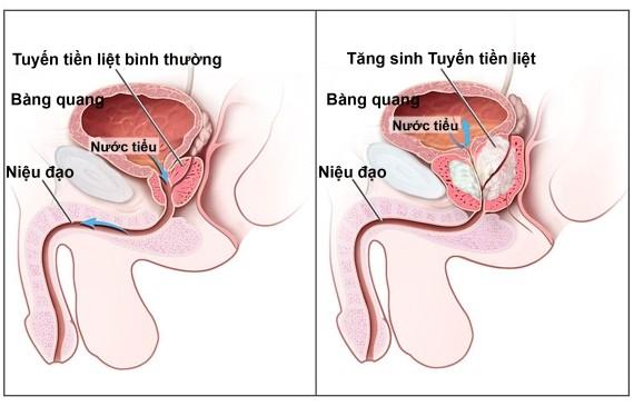 Triệu chứng của tăng sinh tuyến tiền liệt ở nam giới