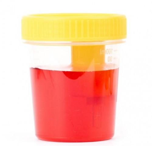 Khi bệnh phát triển nặng sẽ gây ra hiện tượng tiểu ra máu