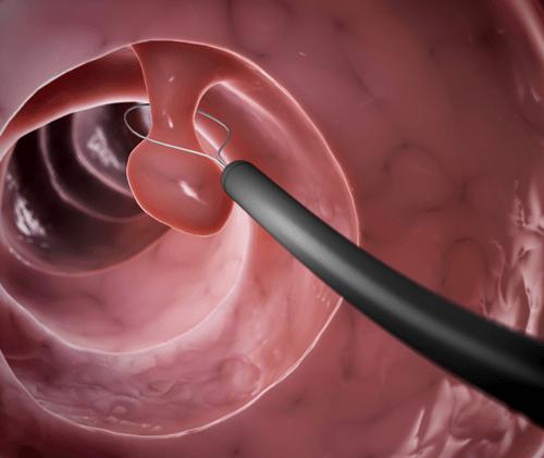 Bệnh có thể điều trị bằng phương pháp xoắn polyp nếu khối u nhỏ