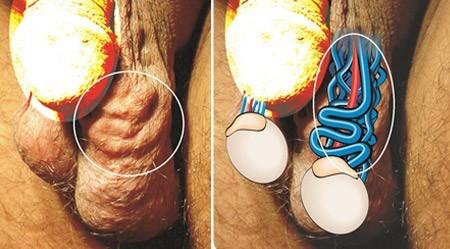 Giãn tĩnh mạch thừng tinh ở nam giới: Nguyên nhân và cách điều trị