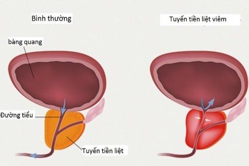 Khi tuyến tiền liệt viêm nhiễm có thể khiến tinh trùng di chuyển chậm, nam giới bị tinh trùng yếu