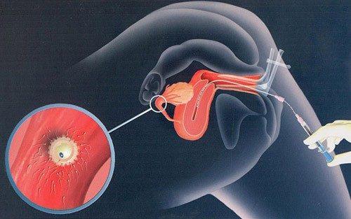 Thụ tinh nhân tạo IUI là giải pháp giúp nam giới tinh trùng yếu sớm thực hiện được thiên chức làm cha