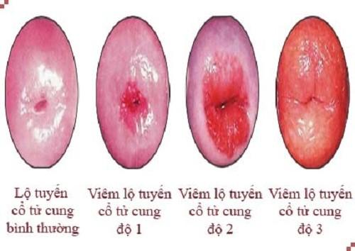 Ảnh hưởng và cách điều trị viêm lộ tuyến cổ tử cung rộng