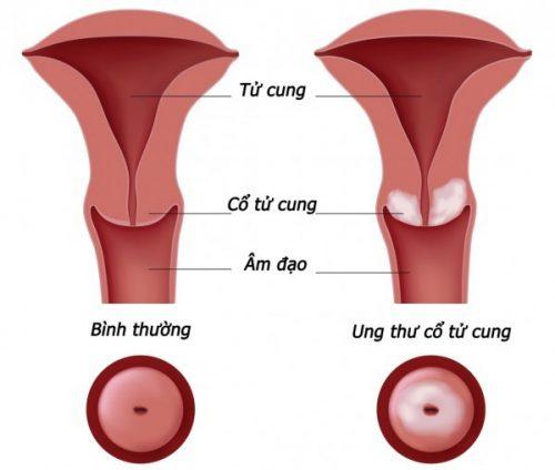 Ung thư cổ tử cung là một loại ung thư nguy hiểm đứng thứ 2 sau ung thư vú