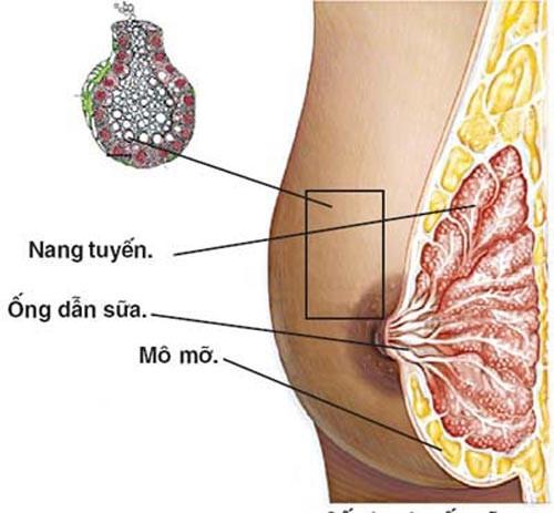 Mổ u nang tuyến vú khi các khối u này nhiều và ảnh hưởng tới sinh hoạt, kích thước vòng 1 của chị em