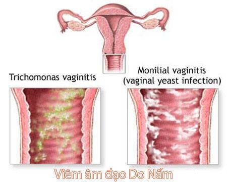 Nấm âm đạo xảy ra trong những trường hợp nào?