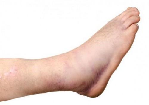 Chân phù nề là một dấu hiệu của tiền sản giật