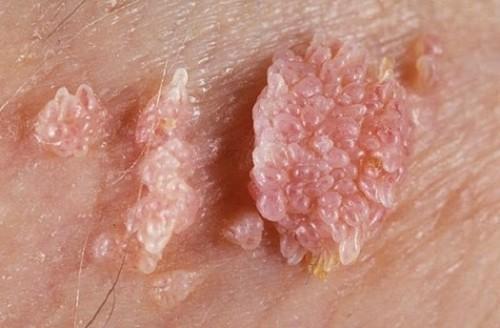 Những bệnh gây ra tình trạng mọc mụn đỏ ở vùng kín nam giới