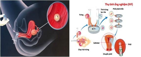 Thụ tinh nhân tạo khác thụ tinh ống nghiệm như thế nào?