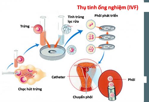 Thụ tinh ống nghiệm và phương pháp  lấy tinh trùng của người chồng và noãn của người vợ tạo phôi trong ống nghiệm