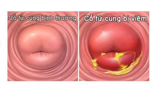 Viêm cổ tử cung là căn bệnh viêm nhiễm phụ khoa thường gặp ở nữ giới