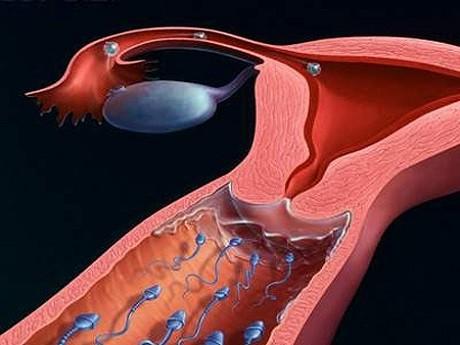 U xơ tử cung có thể trở ngại quá trình thụ thai diễn ra