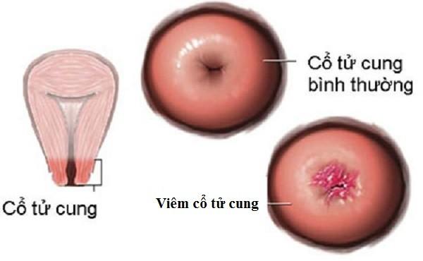 Những nguyên nhân gây viêm cổ tử cung ở nữ giới