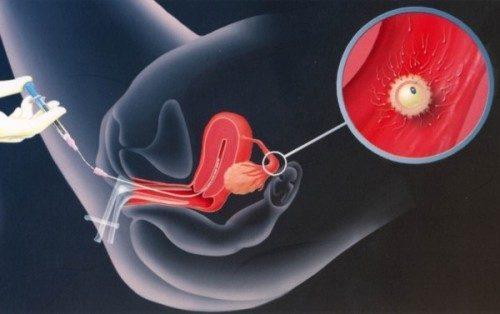 Thụ tinh nhân tạo bằng phương pháp bơm tinh trùng