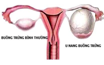 U nang buồng trứng là sự hình thành và phát triển của khối nang bất thường trên buồng trứng của nữ giới