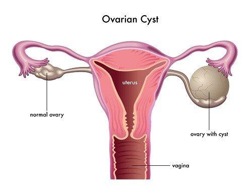 U nang buồng trứng lành tính có cần mổ không?
