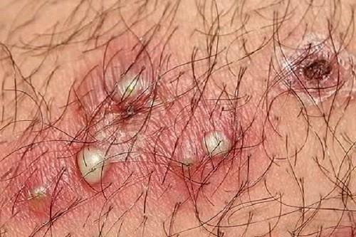 Mụn rộp sinh dục dần vỡ loét tạo thành các vùng viêm nhiễm