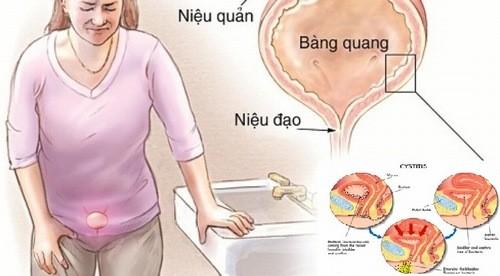 Nhiễm trùng đường tiểu là gì?