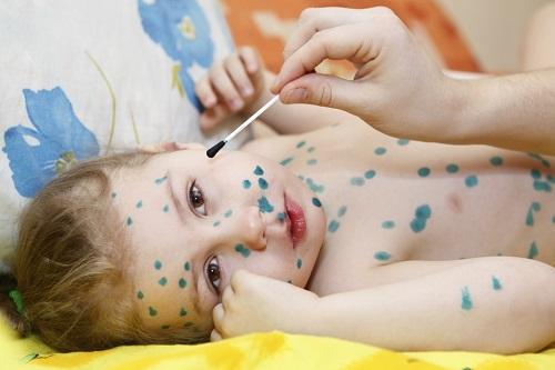 Bệnh thủy đậu ở trẻ em cần kiêng gì?