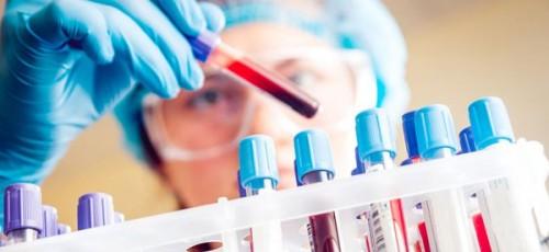 Xét nghiệm double test là một xét nghiệm sàng lọc sử dụng máu mẹ bầu đánh giá nguy cơ dị tật thai nhi.