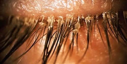 Phổ biến, rận mu ký sinh ở vùng kín, tuy nhiên, tại các vùng lông mày, lông mi, tóc.... cũng rất dễ lây nhiễm bệnh.
