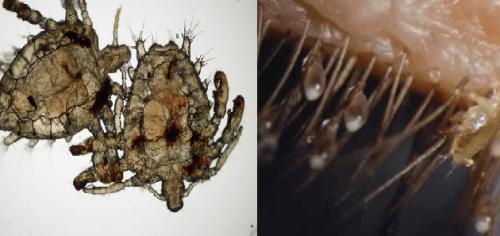 Rận mu khi quan sát dưới kính hiển vi thấy như những con cua màu xám nhạt