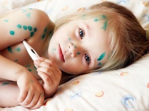 Nổi phỏng nước, sốt... là những dấu hiệu của bệnh thủy đậu ở trẻ.