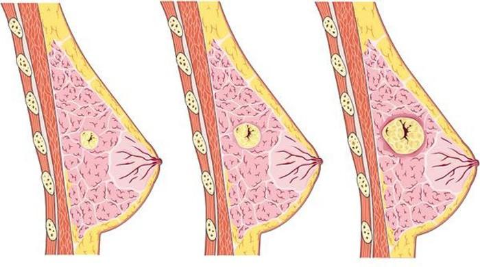 U nang tuyến vú và những điều cần biết