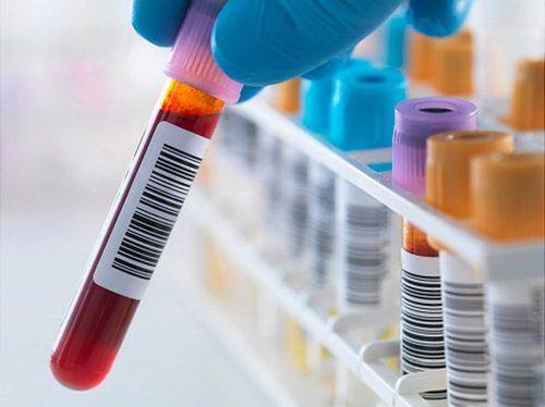 Xét nghiệm máu khâu quan trọng nhất trong khám nội tiết.