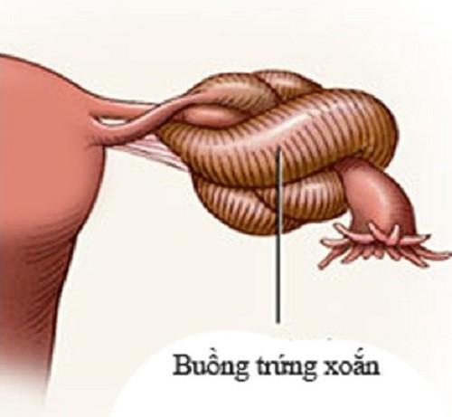 Nguyên nhân xoắn buồng trứng