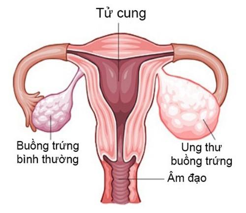 Những nguyên nhân chính gây ung thư buồng trứng