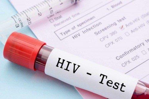 Xét nghiệm nhanh HIV có chính xác không là băn khoăn của nhiều người.