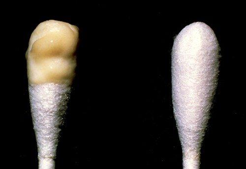 Khí hư màu vàng có mùi hôi là một trong những biểu hiện bất thường về sức khỏe vùng kín