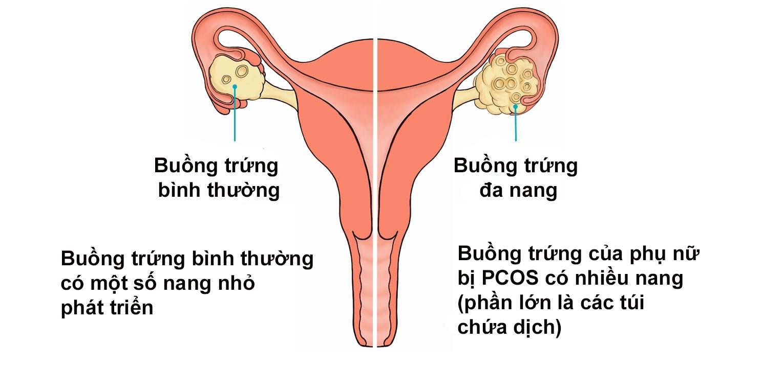 Ảnh hưởng của bệnh buồng trứng đa nang