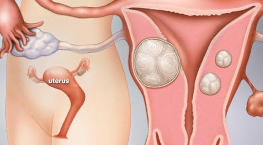 Dấu hiệu bệnh u xơ tử cung chị em cần nhận biết