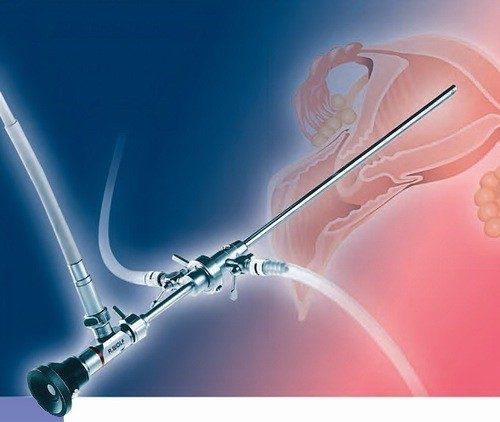 Mổ nội soi buồng tử cung ít gây đau sau mổ, giúp bệnh nhân nhanh chóng phục hồi sức khỏe nhanh, và mang tính thẩm mỹ cao.